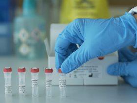 新型コロナウイルス初期症状から入院まで起きた真実の出来事 | PCR検査を受けれるまで